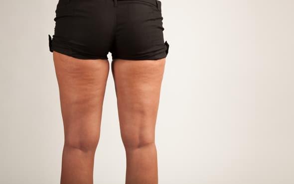 mujer-con-celulitis-en-las-piernas