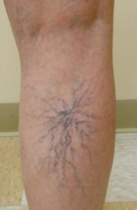 Síndrome de piernas inquietas causas síntomas y remedios