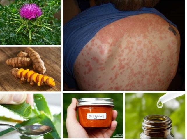 remedios caseros para tratar los síntomas de la psoriasis