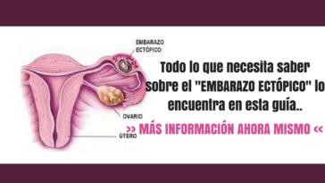 Embarazo ectópico más información