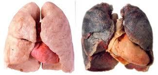 GO2 Antitox Pulmones