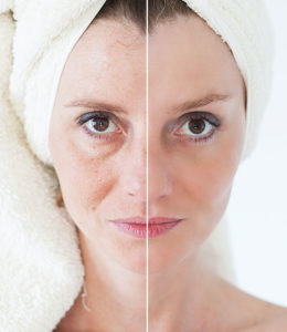 resultados de la radiofrecuencia facial